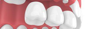 kansas city dental bridge