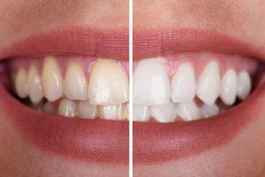 kansas city teeth whitening