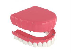 kansas city dentures