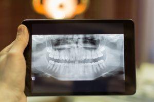 kansas city digital dentistry