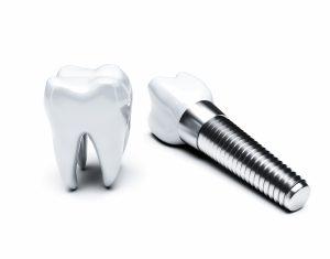 kansas city dental implants