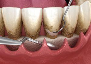 kansas city periodontics